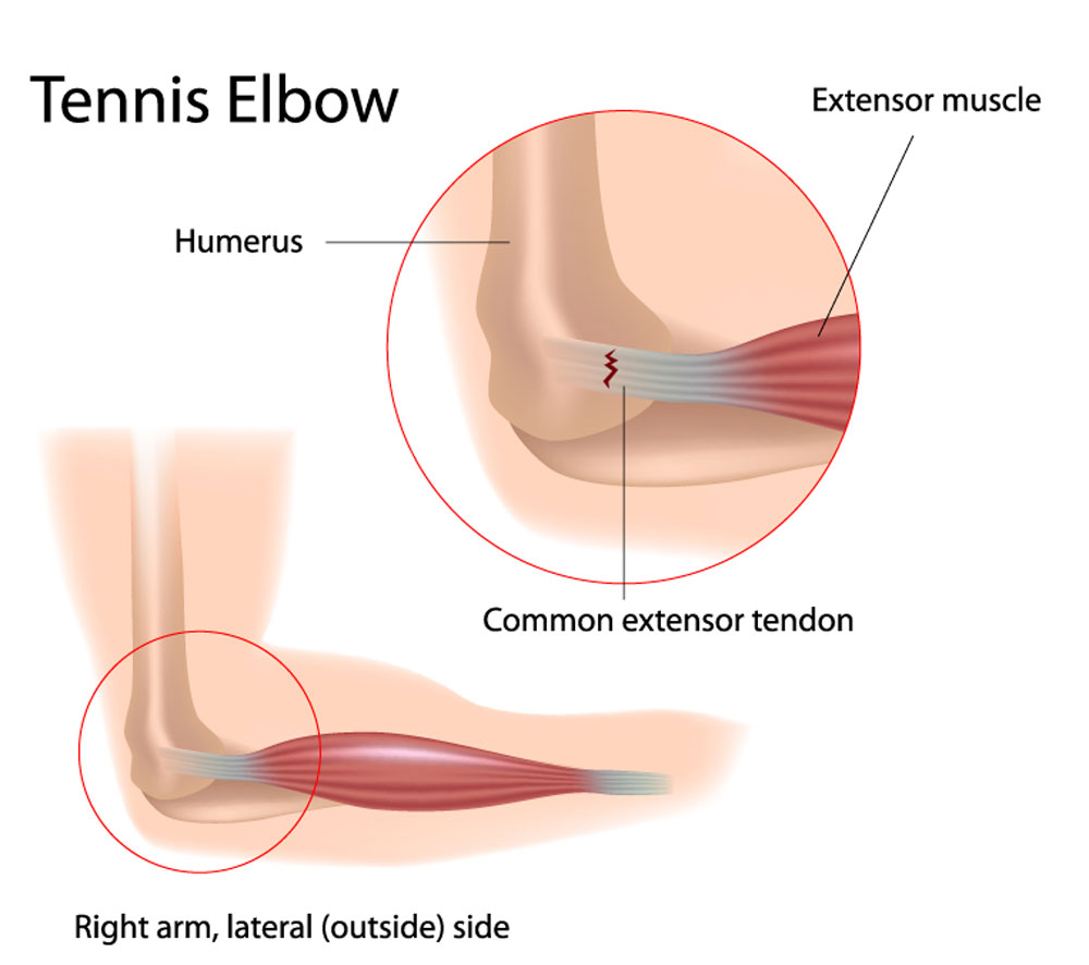 hight resolution of tennis elbow lateral epicondylitis
