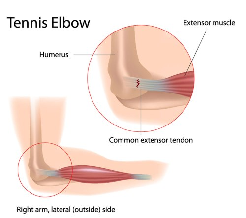 small resolution of tennis elbow lateral epicondylitis