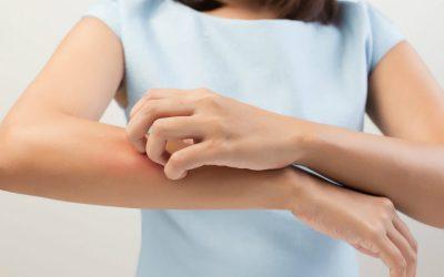 Alergia medicamentosa: sintomas e causas