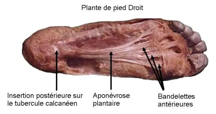 aponevrose-plantaire