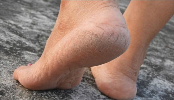 Caseiros pés remédios