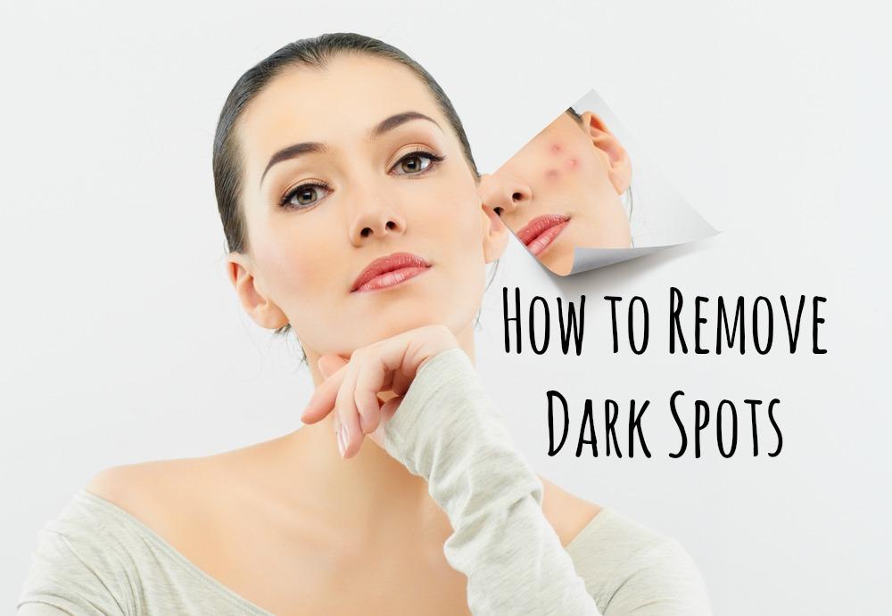 How to Remove Dark Spots