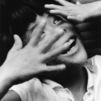 """Gemella non vedente"", 1957, dalla serie ""Hiroshima"" 457 x 560 mm. (Ken Domon Museum of Photography)"
