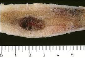osteoma osteoide 9