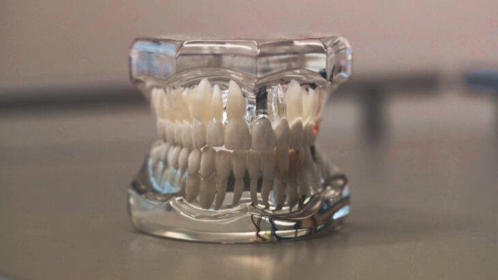 歯の模型2