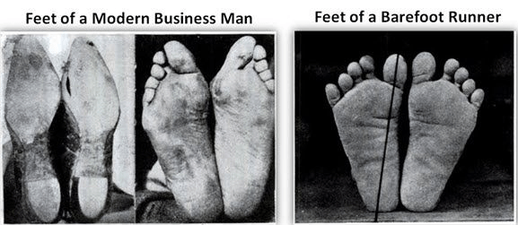 Free Feet, Especially for Wide Feet