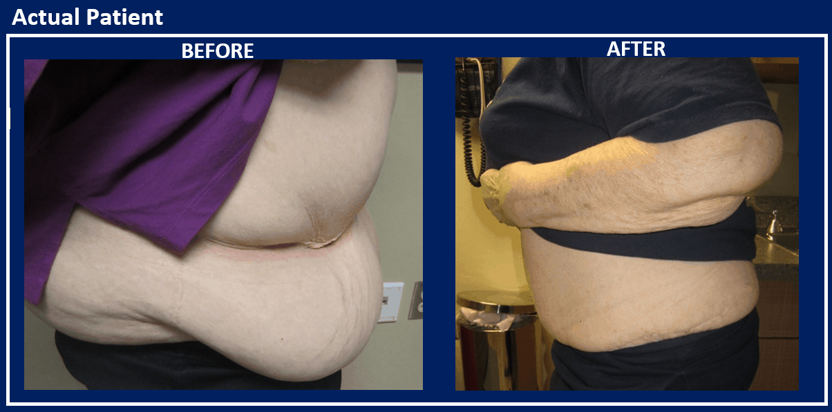 Panniculectomy Reno   Excess Skin Removal   Sasse Surgical ...