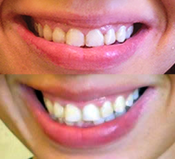 SmileBrilliant Before After Just Teeth