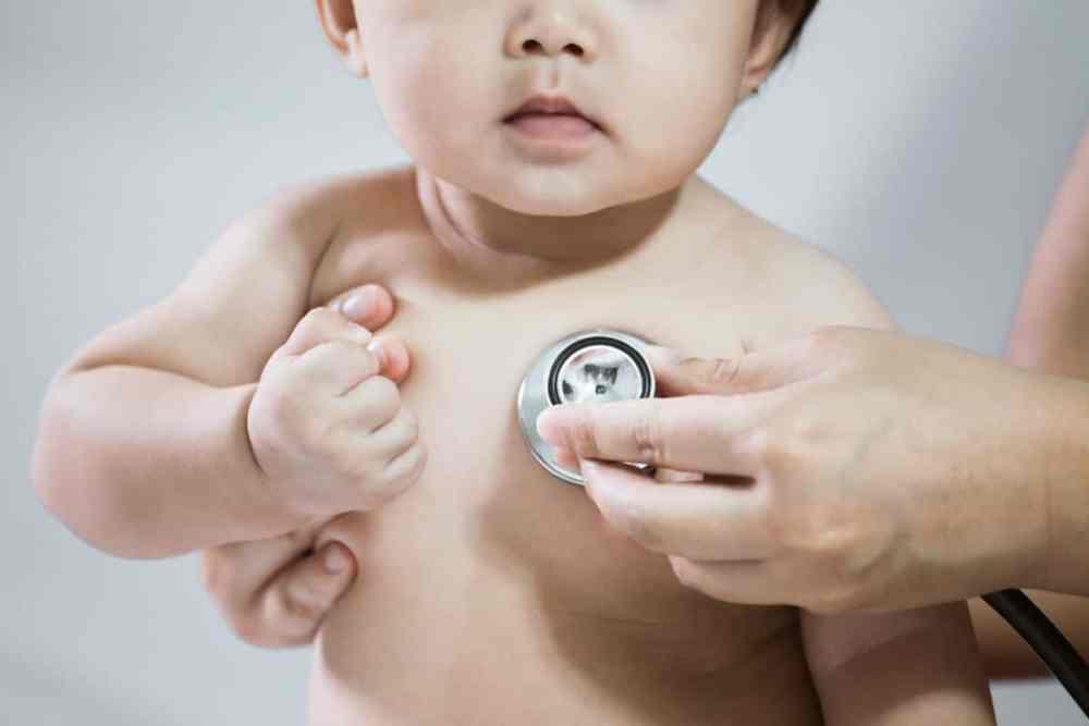 tratamento para microcefalia