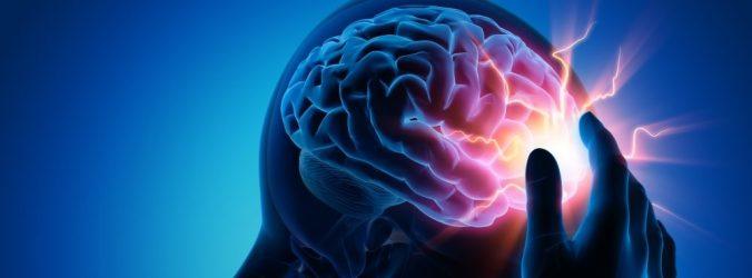 Acidentes vasculares cerebrais comuns entre doentes com Covid-19