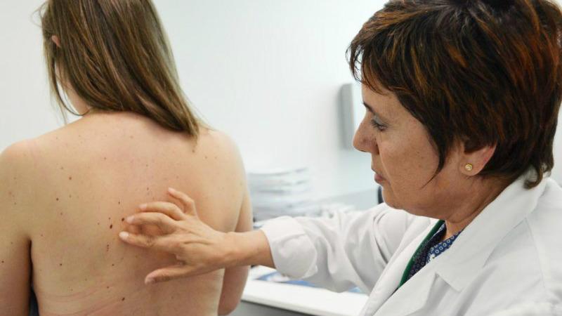 melanomas
