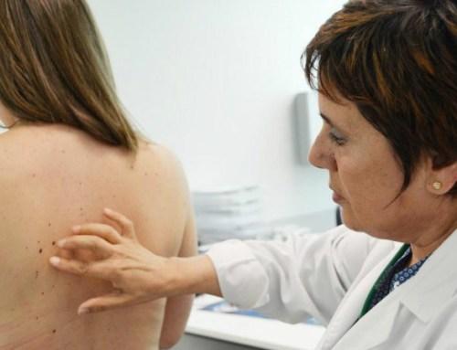 Um em cada cinco melanomas ficaram por diagnosticar em 2020