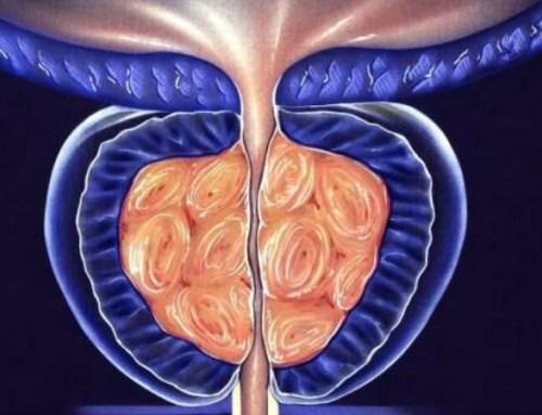 Investigadores do Porto em projeto inovador de combate ao cancro da próstata