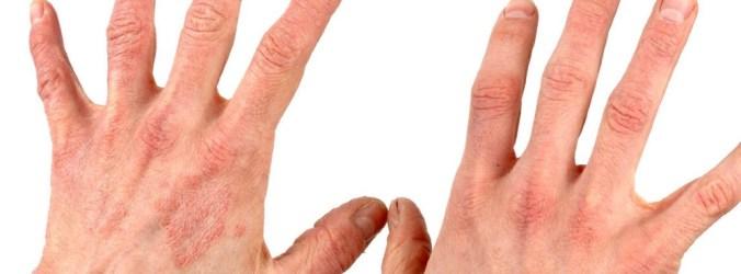Porfiria eritropoiética: Tratamento com dersimelagon melhora tolerância à exposição solar