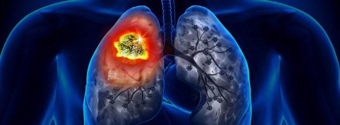 CPNPC com mutação KRASG12C sem expressão em não-fumadores