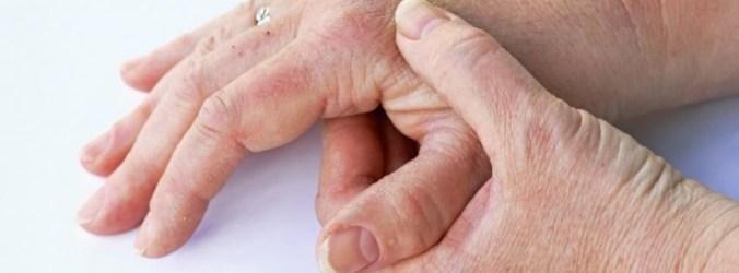 Biológicos podem ser mais valia para prevenir ou atrasar artrite psoriática