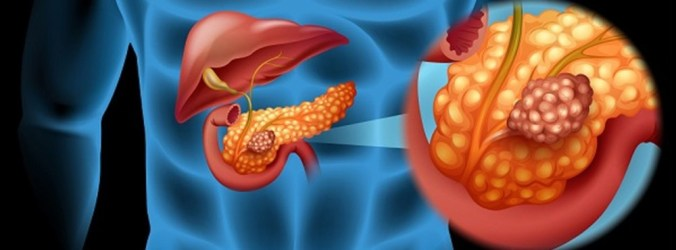 Diabetes e perda de peso aumentam risco de cancro do pâncreas
