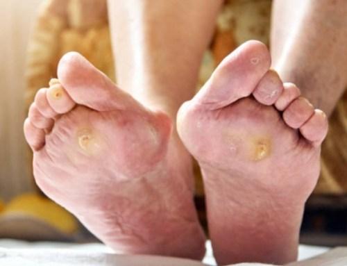 Podologistas defendem criação de consulta no SNS para evitar amputações