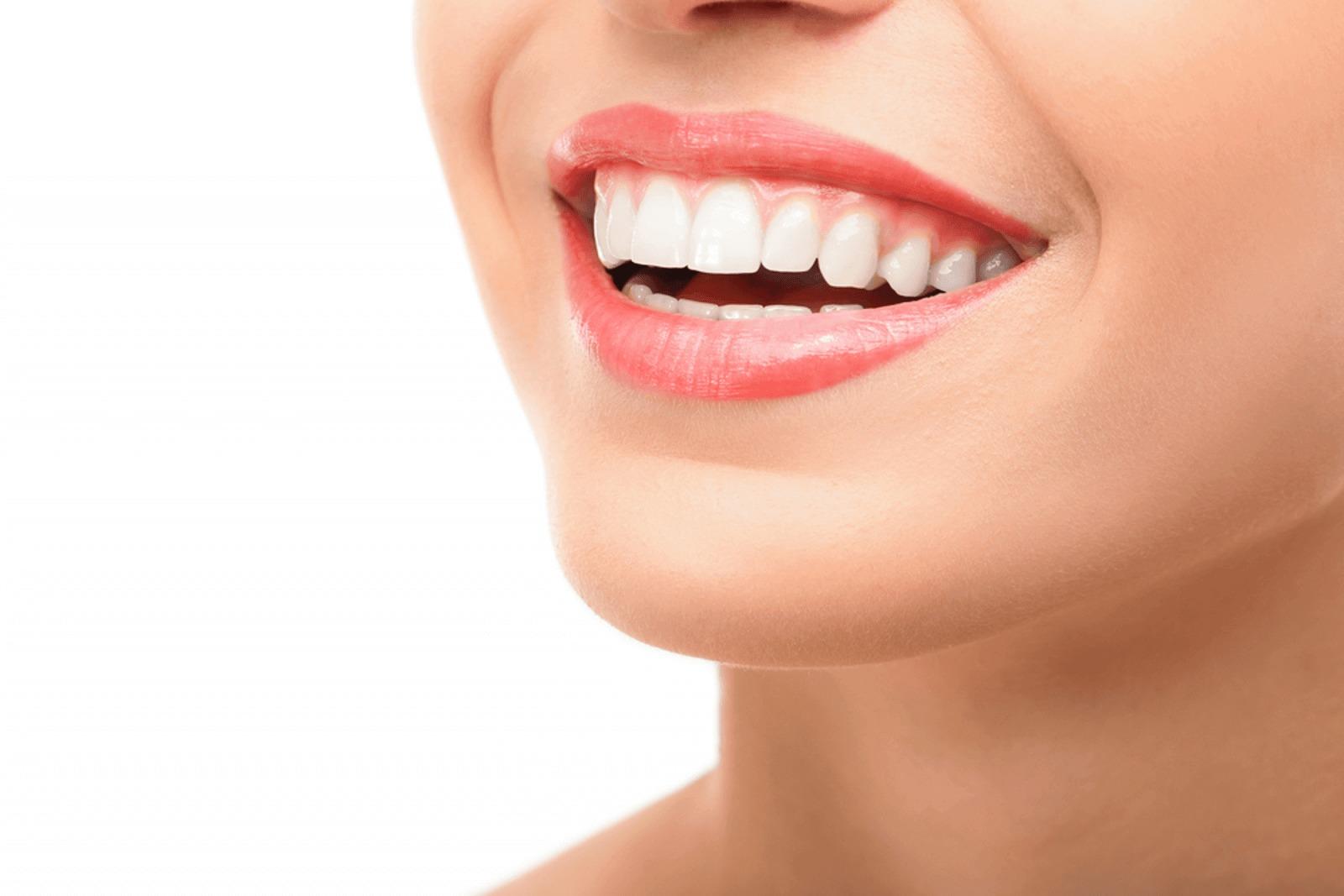 إليك أفضل 4 معلومات عن تجميل الاسنان بخميس مشيط الأخيرة ستدهشك I