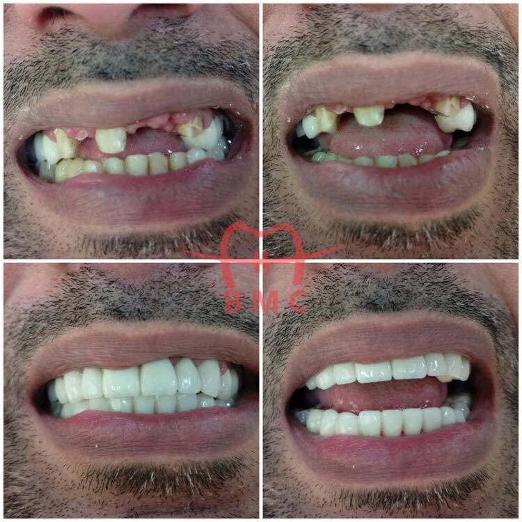 افضل 4 مستشفيات في زراعة الاسنان بخميس مشيط الثالثة الأعلى