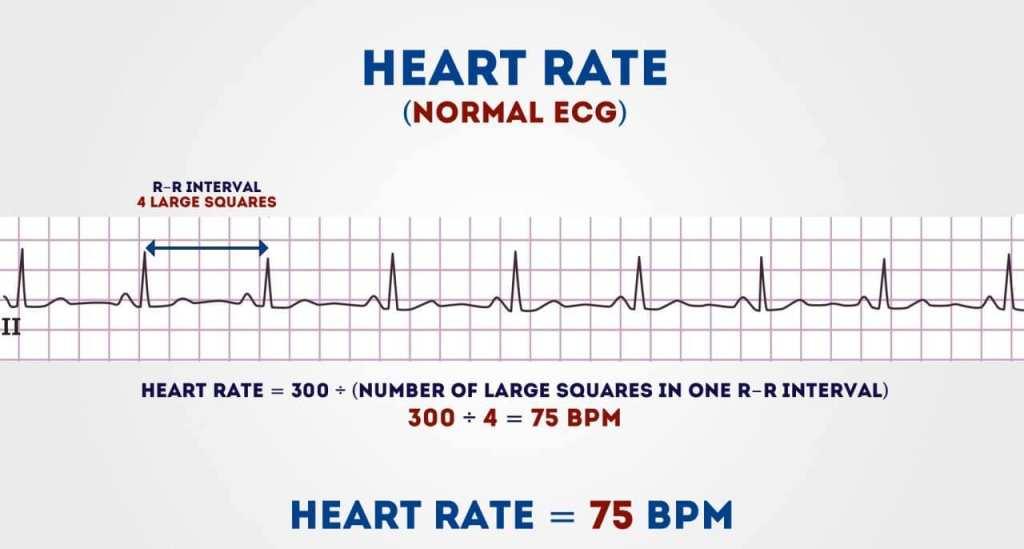 قراءة تخطيط القلب