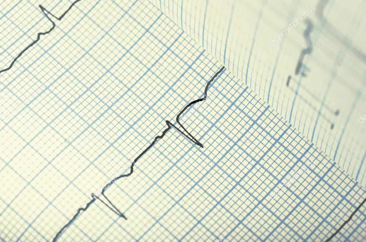 كيف تقرأ تخطيط القلب ؟ How to read ECG