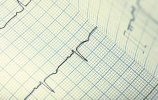 تخطيط القلب ECG