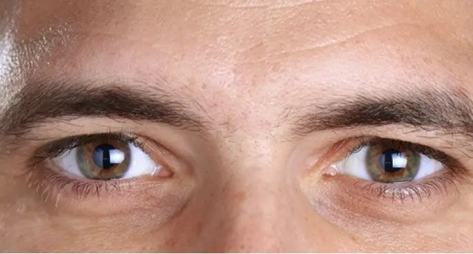 4 Simple ways on how to get clear white eyes naturally