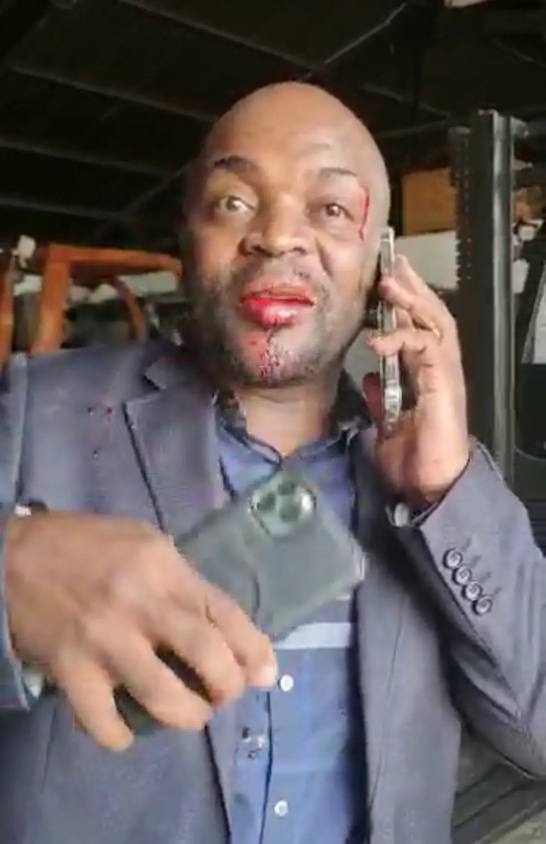 Video: Former Mayor of Pretoria Solly Msimanga beaten up