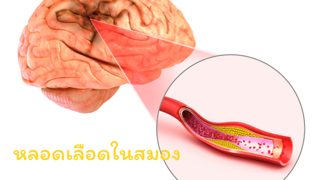 หลอดเลือดในสมอง สวัสดีสุขภาพดี สวัสดี sawadd sawasdee