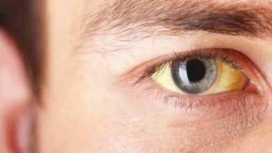 Photo of «إصفرار العين» ينبئ بأمراض خطيرة