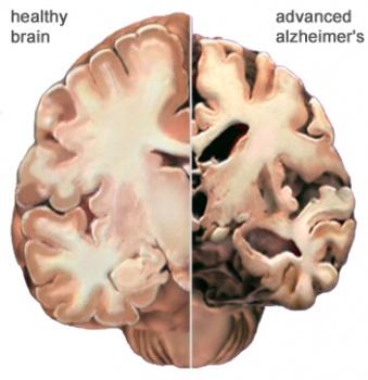 Normal brain versus Advanced Alzheimer's disease