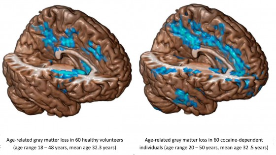Loss of gray matter