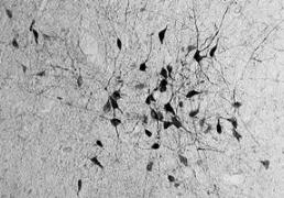 Neurons affected by thyroid hormones (Credit: Mittag et al.)