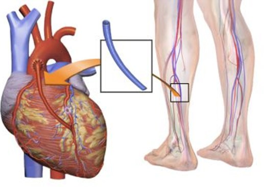 Illustration of a typical coronary artery bypass surgery. A vein from the leg is removed and grafted to the coronary artery to bypass a blockage. IMAGE CREDIT: BLAUSEN MEDICAL COMMUNICATIONS, INC.