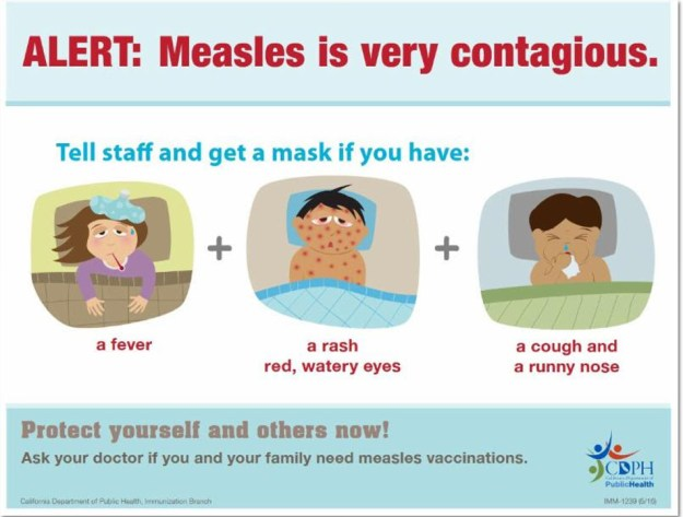 Measles very contagious
