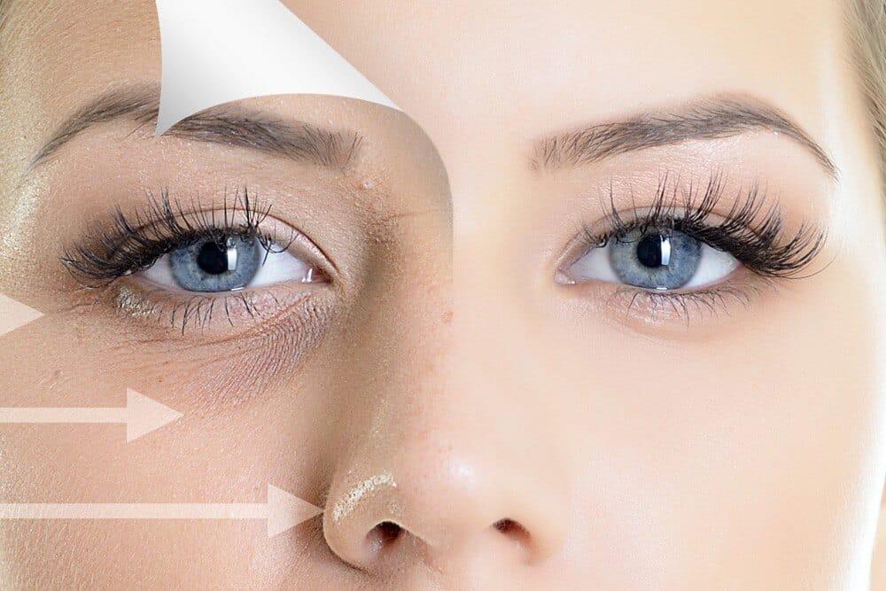 Which Is The Best Under Eye Filler? - SB Aesthetics