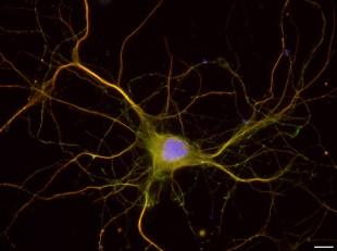 - Inserm U1204 - Hippocampal Neuron DIV8