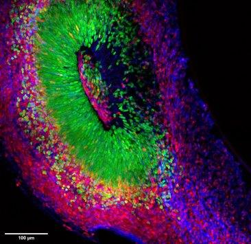 Human-cerebral-organoid