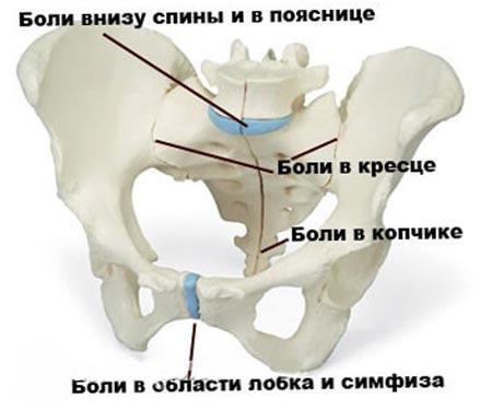 Что сделать чтобы лобковая кость не расходилась после родов. Что такое симфизит