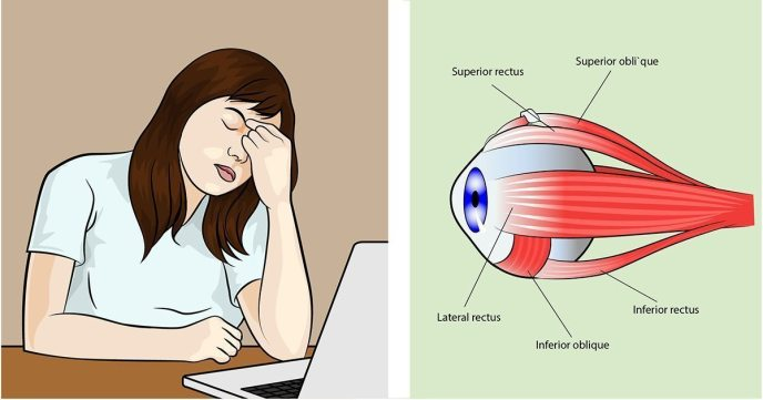 Image result for DO YOUR EYES FEEL STRAINED AND TIRED? HERE WHAT YOU NEED TO KNOW TO TREAT IT