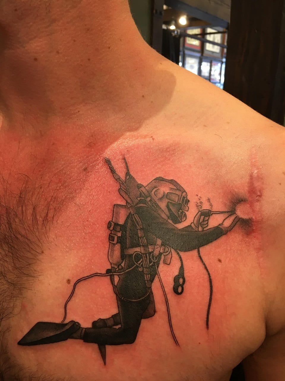 50 Tattoos That Turned Birthmarks And Scars Into Works Of Art