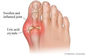 gout big toe