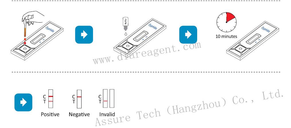 Sexual Transmit Disease Vdrl Rapid Test Kit - Buy Vdrl.Vdrl Test Ktt.Rapid Test Kit Product on Alibaba.com