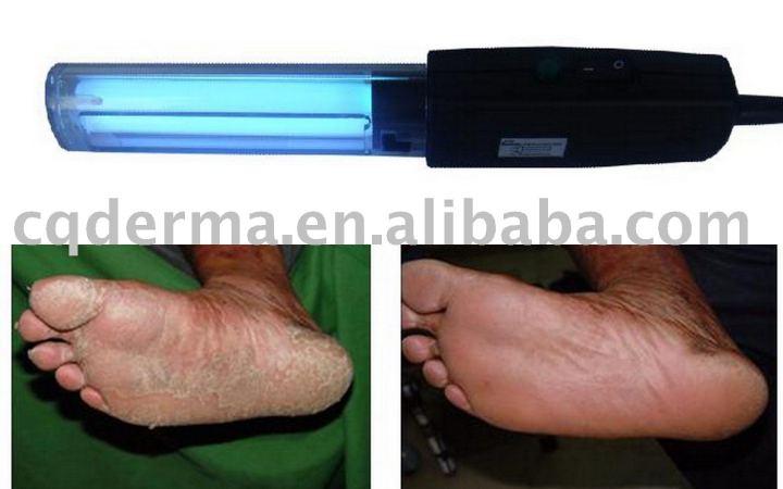 Eczema Ultraviolet Light Treatment Decoratingspecial Com