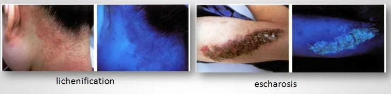 Examination Dermatology