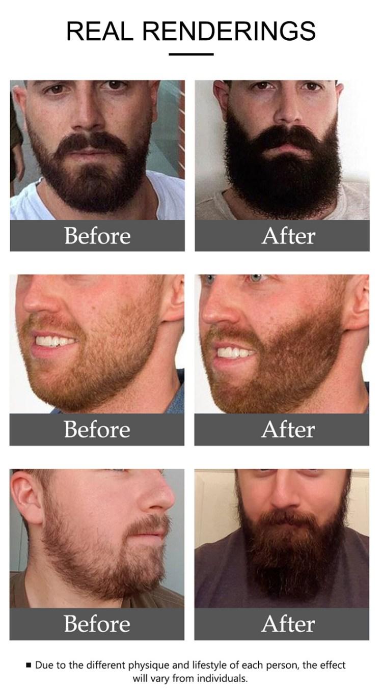 Aichun Beauty Pure Nutrients Regrowth Essential Men Hair Beard Growth Oil