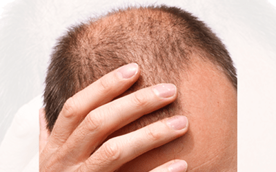 Discoloration is a common concern, and a primary reason why some people decide against scalp micro pigmentation