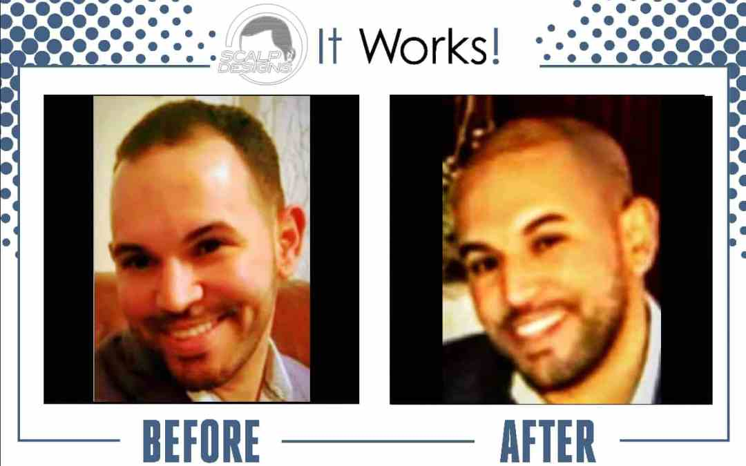 good looking man hairloss picture