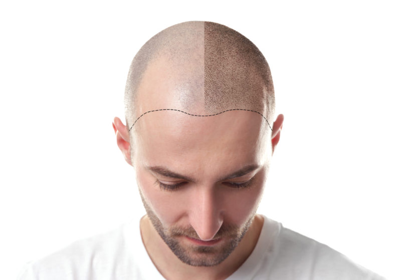 Best Haircut and Styling Tips for Men with Receding Hairlines